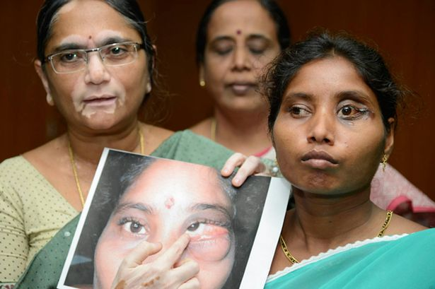 mujer paso 23 años dos dientes tumor ojo