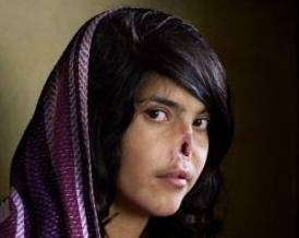 Foto de chica Afgana desfigurada gana el world press photo