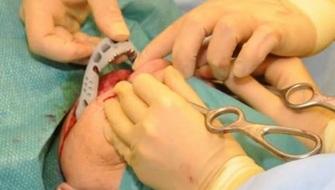 Implantan hueso hecho en una impresora 3D